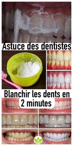 Previous Emergency Dentist Dental Health - r Health And Beauty, Health And Wellness, Diy Beauty, Beauty Hacks, Dentist Appointment, Emergency Dentist, Natural Toothpaste, Beauty Tips For Teens, Atkins Diet