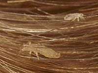 Coconut Oil and Head Lice - Hybrid Rasta Mama- In case I ever need it! The wonders of Coconut oil! Lice Treatmemt, Hair Lice, Coconut Oil Lice, Coconut Oil Uses, Natural Lice Treatment, How To Treat Lice, Lice Shampoo, Lice Remedies, Scalp Problems
