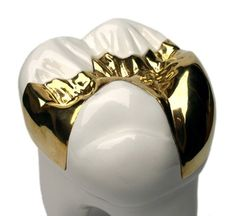 Sweet Tooth Gold | www.northrydedentists.com.au, $500.00