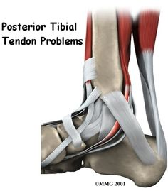 Posterior Tibial Tendon Problems can [and is] caused by Rheumatoid Arthritis. Welcome to my chances of sleeping at night. Zero.