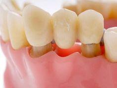 Tháo răng sứ có đau không?