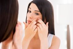 There's no need to live with skin blemishes of the past! Learn what causes acne scars, the common types of acne scarring, and which acne scar treatment is right for your skin. Acne Scar Removal Treatment, Back Acne Treatment, Acne Treatments, Acne Skin, Acne Scars, Oily Skin, Bad Acne, Types Of Acne, Advice For Bride