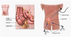 Laparoscopic Appendicitis Surgery India