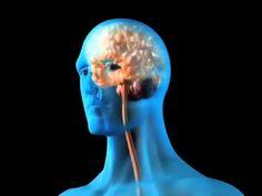 Schizophrenia (Understanding Disease: Psychiatry)