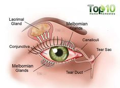 Dry eyes, also known as dry eye syndrome, occurs when your tears are not providing enough lubrication for your eyes. This can cause a lot of discomfort and produce several signs and symptoms. Some signs and Dry Eye Remedies, Top 10 Home Remedies, Natural Remedies, Snoring Remedies, Dry Eye Symptoms, Dry Eyes Causes, Doterra, Apple Cider, Apple Juice