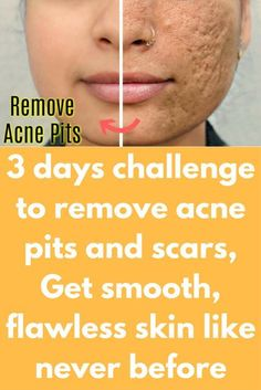 3 days challenge to remove acne pits and scars, Get smooth, flawless skin like never before. How To Remove Acne Holes On Face Naturally Scar Remedies, Home Remedies For Acne, Skin Care Remedies, Natural Remedies, Smooth Skin Remedies, Homeopathic Remedies, Pimples Remedies, Health Remedies, Make Up