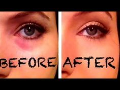 ▶ Bye! Bye! Dark Eye Circles/Bags by Combining 2 Drugstore Products - YouTube