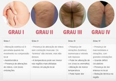 Graus da celulite Nail Spa, Physical Therapy, Herbalife, Spa Day, Mary Kay, Blog, Medicine, Personal Care, Health Care