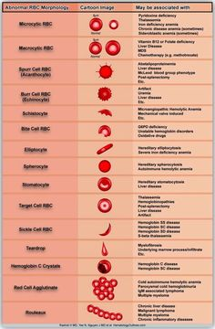 Medical Laboratory and Biomedical Science: Reporting and grading of abnormal red blood cell morphology