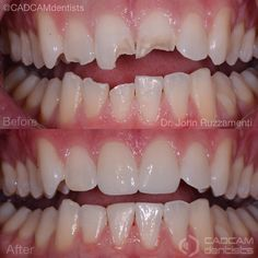 """501 Me gusta, 4 comentarios - Dentistry Forum (@dentistry_forum) en Instagram: """"Case from @cadcamdentists - . Ready To Upgrade Your SMILE? #MotivationMonday . If you are ready to…"""""""