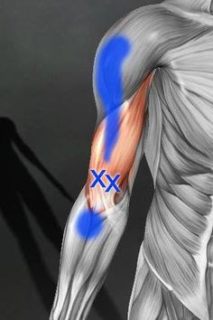 Trigger points in distal portion of the biceps brachii can be experienced as anterior shoulder pain! Dry Needling, Trigger Point Therapy, Hand Massage, Reflexology Massage, Physical Pain, Physical Therapist, Muscle Anatomy, Massage Benefits, Acupressure Points