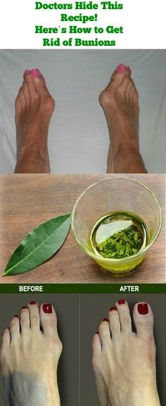 Doctors Hide This Recipe! Here's How to Get Rid of Bunions Completely Naturally