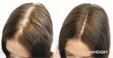 Of course, these 10 home remedies will give you full hair - Schönheitstipps - Hair Treatment Facial Hair Growth, Biotin Hair Growth, Vitamins For Hair Growth, Hair No More, Full Hair, Hair Remedies For Growth, Hair Loss Remedies, Castor Oil For Hair, Regrow Hair