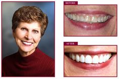 Porcelain veneers also referred to as dental veneers are porcelain laminates designed to be as thin as contact lenses.