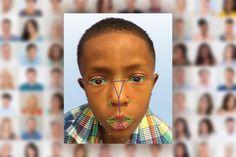 richardhaberkern.com http://soundlazer.com Facial recognition will help doctors detect rare genetic disease