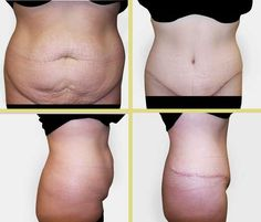 Tummy Tuck Gallery - Columbia Plastic Surgery - Dr. Howard