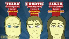 """Fourth nerve palsies have a """"nasal upshoot"""" and can be congenital or caused by trauma. Sixth nerve palsies give a """"crossed eye"""" and can be caused by increased intracranial pressure. All of the palsies can occur from vasculopathic issues (diabetes and hypertension) and tumor or other compressive lesions."""