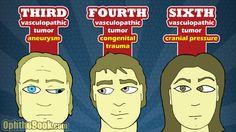 Cranial Nerve Palsy, The Visual Performance Center, Brain Injury Nerve Palsy, Nursing School Tips, Ob Nursing, Nursing Schools, Nerve Disorders, Intracranial Pressure, Eye Facts, Pharmacology Nursing, School