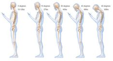 Posture is the way the body is positioned when standing or sitting. Posture is an important factor in many things. Great posture not only shows confidence but Neck And Back Pain, Neck Pain, Neck Hurts, Vértebra Cervical, Vida Natural, Smartphone, Bad Posture, Better Posture, Texts