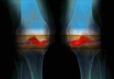 NPR: 6,000-Year-Old Knee Joints Suggest Osteoarthritis Isn't Just Wear And Tear