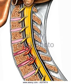 Cervical Disc Herniations at C5 6 and C6 7 - Stock Image