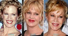 Antonio Banderas's wife, Melanie Griffith, doesn't talk about her surgery but the before and after photos tell us a story worth mentioning. ...