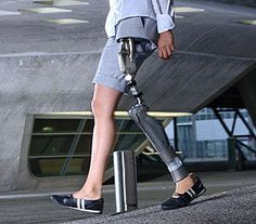 Helix 3D Hip Joint System & C-Leg® Prosthesis