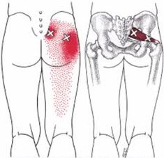 Piriformis syndrome can cause buttock pain, pelvic pain, hip pain, even sciatica or sciatic pain. It can be related to spinal stenosis All about Piriformis Syn Sciatica Pain, Sciatic Nerve, Nerve Pain, Hip Pain, Low Back Pain, Syndrome Pyramidal, Piriformis Syndrome Symptoms, Dry Needling Therapy, Dor Cervical