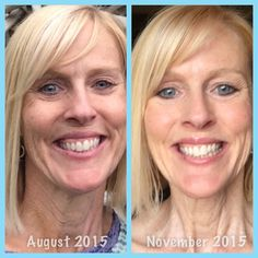 So EXCITED to share MY Rodan + Fields Real Results with you.  The picture on the right was taken 10 weeks after I started using REVERSE, REDEFINE Power Pack and REDEFINE Multi-Function Eye Cream.  My skin is brighter and softer than it has been in years!  I've also noticed less wrinkles, especially on my neck.  Loving my results!!  #rodanandfields #changingskin #changinglives