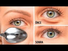 If you want to get rid of eye bags and dark circles in a day, use ice . Human Body Facts, Oddly Satisfying Videos, Facial Exercises, Mascara Tips, Puffy Eyes, Blackhead Remover, Natural Face, Popular Hairstyles, Dark Circles