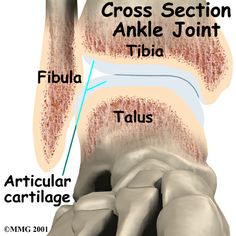 Foot Osteochondritis Dissecans of the Talus Anatomy, Articular Cartilage