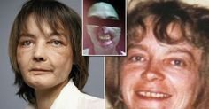 WARNING: Graphic content. Isabelle Dinoire, 49, succumbed to two types of cancer earlier this summer after a decade taking powerful immunosuppressant drugs