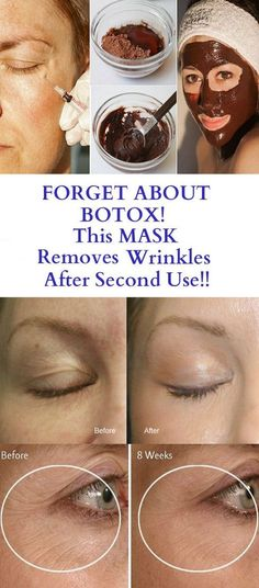 Is Botox safe for your face? Forget About Botox- This Mask Removes Wrinkles After Second Use. Face Mask For Blackheads, Face Wrinkles, Prevent Wrinkles, Pimples, Eye Wrinkle, Wrinkle Creams, Face Creams, Wrinkle Remover, Peeling