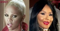 Worst Plastic Surgery The Worst Plastic Surgery In Hollywood History 15 Worst Plastic Surgery Before And After