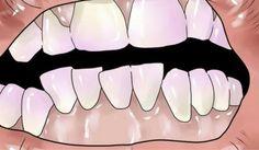 Come rimuovere il tartaro dai denti in modo naturale - Vivere più sani