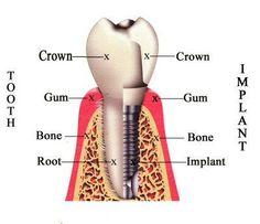 Procedura implica 3 etape:  1. Un surub metalic (din titan sau un alt metal asemenator) este fixat in os, in pozitia dintelui original.  2. Dupa cateva luni, un bont protetic este plasat deasupra surubului metalic.  3. Medicul stomatolog ataseaza deasupra acestuia o coroana ce inlocuieste dintele natural.