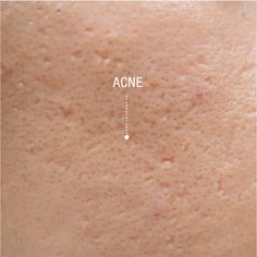Acne can affect more than your skin. It affects your self-confidence and can take it's toll on your emotional health. Whether you are suffering from mild or active #acne, scarring or even if your skin is prone to acne breakouts, the #pHformula A.C.N.E. skin resurfacing treatments accomodates every single unique skin concern. Find out more from your pHformula Skin Specialist. #skincare #skinresurfacing #professionalskincare #skinresurfacing #skinhealth Skin Resurfacing, Skin Specialist, Acne Breakout, Your Skin, Confidence, Skincare, Health, Unique, Health Care