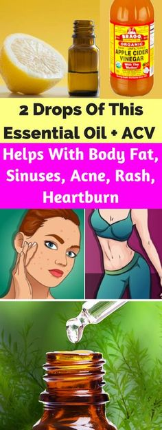 2 Drops Of This Essential Oil + Apple Cider Vinegar Helps With Body Fat, Sinuses, Acne, Rash, Heartburn – healthycatcher