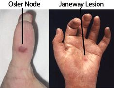 Endocarditis symptoms: Janeway lesions (painless erythematous lesions on palms/soles) & Osler's nodes (painful, raised red lesion on pad of fingers/toes)
