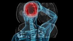 Absceso cerebral video