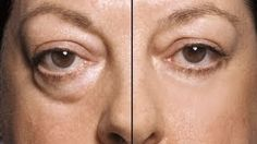 HOW TO: MAKE UNDER EYE BAGS DISAPPEAR IN SECONDS!!!! http://www.youtube.com/watch?v=or6OX2kGM98