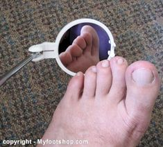 Foot health is especially important for diabetics, this is a neat little tool for seeing normally unseen parts of your body