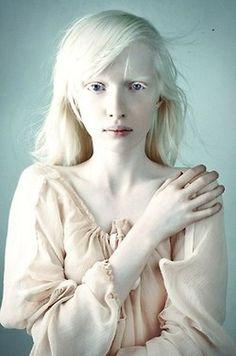 Albinismo (66)Ragazza