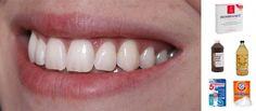 5 façons de blanchir ses dents
