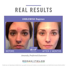 Rodan + Fields Unblemish.  This stuff is a total game changer. alide.myrandf.com