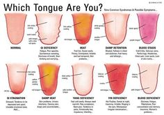 http://livingtraditionally.com/can-tongue-tell-health/ There are a number of factors that can come into play here – some of which may be present more often than others. They include changes in texture, the presence of sores or blemishes, and changes in color. All of these signs may be pointing to the fact that you're in need of some help.