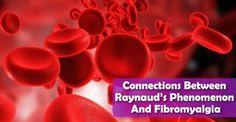 Connections Between Raynaud's Phenomenon And Fibromyalgia
