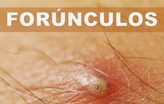 Ear Pimple, Pimples, Armpit Boil, Skin Disease Pictures, Doctor Pimple Popper, Honey Face Cleanser, Homemade Pore Strips, Diy Blackout Curtains, Covering Acne
