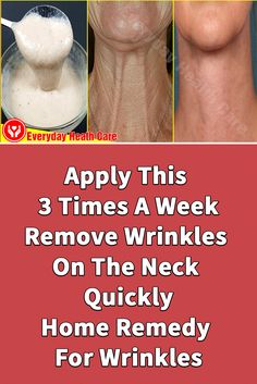 Home Remedies For Wrinkles, Neck Wrinkles, Heath Care, Wrinkle Remedies, All Natural Skin Care, Natural Health, Face Skin, Crepy Skin, Face Massage