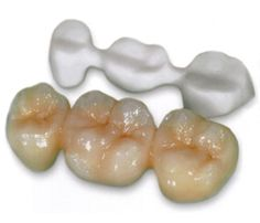 We pride ourselves in keeping up with the latest and bringing the best that technology can offer to our patients. Dental technology is consistently being developed to meet the demands of consumers. It places an emphasis on patient comfort and care................See for more details: http://tinyurl.com/mrdqkk6